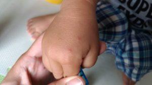 手足口病解熱後の発疹。手の甲にできました。